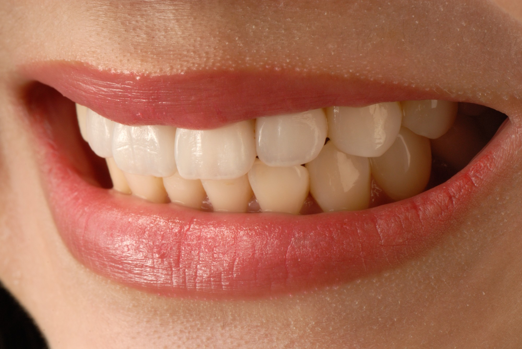 5 Reasons for Getting Veneers From a Dentist in Aurora